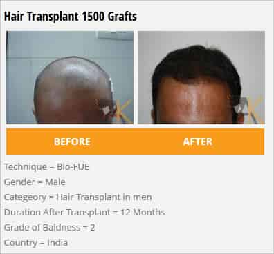 hair transplant 1500 grafts