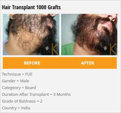 hair transplant 1000 grafts