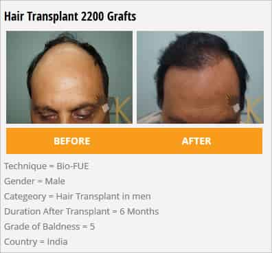 hair transplant 2200 grafts